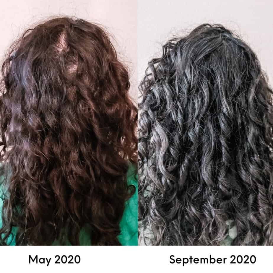 curly hair growth with remedies